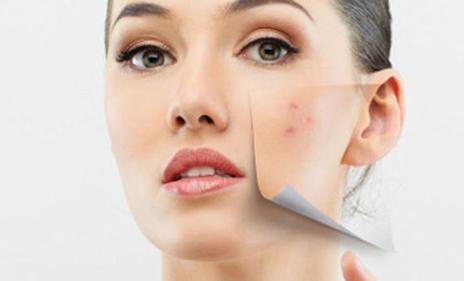 Acné et maquillage   comment camoufler un bouton   – Taaora – Blog ... a209a49e386